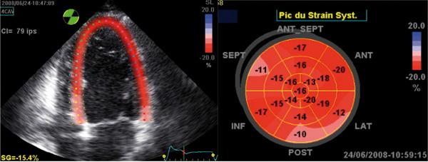 Hypertrophie auriculaire gauche medicamento para la hipertensión