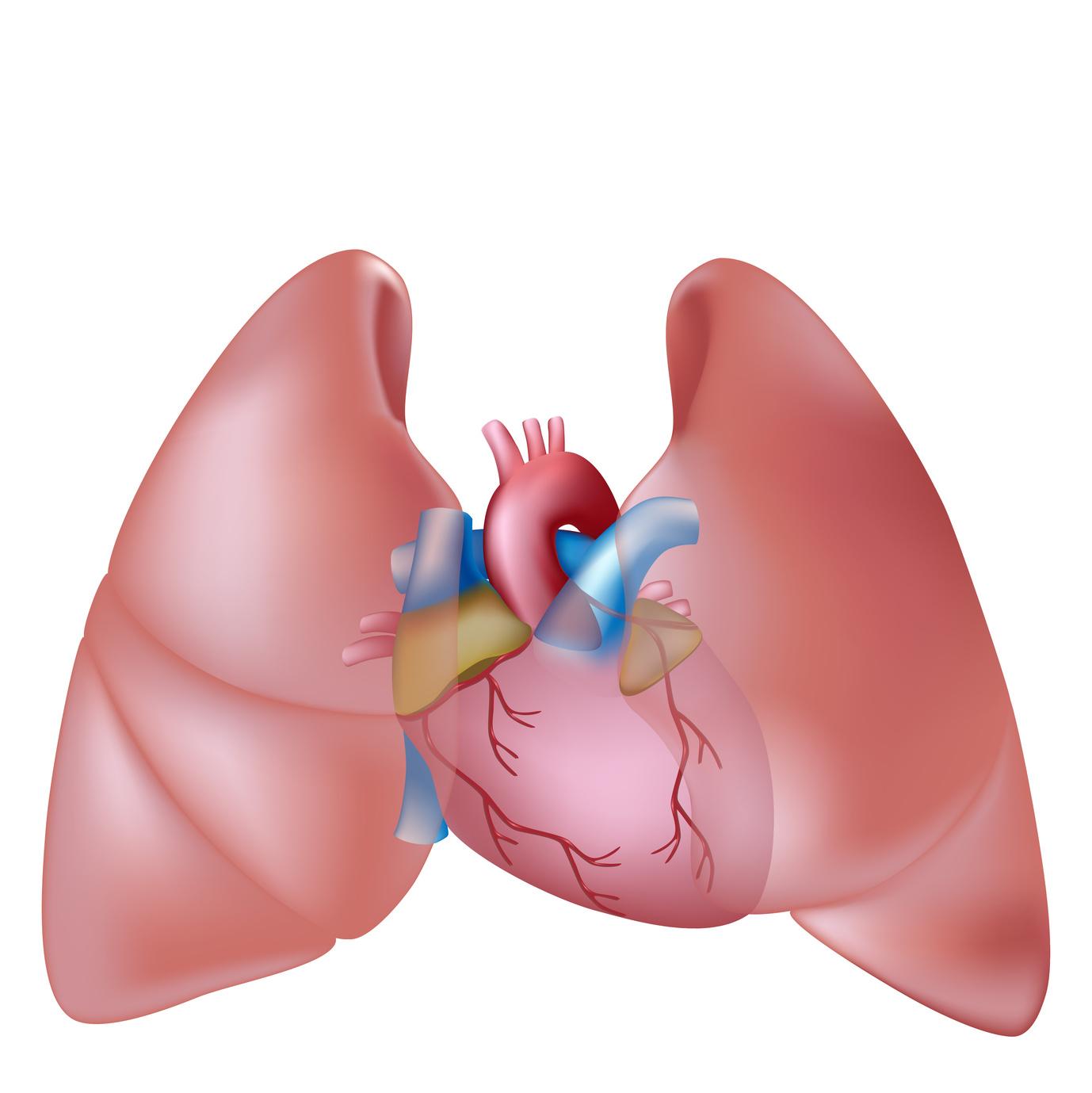 CIA et hypertension artérielle pulmonaire - Cardiologie..