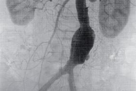 Traitement endovasculaire des anévrismes de l'aorte abdominale - Une ...