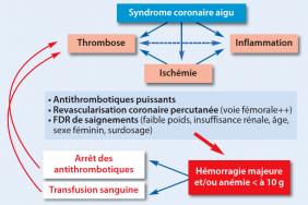 transfusion anémie