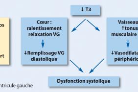 Cœur Et Hypothyroidie Cardiologie Pratique